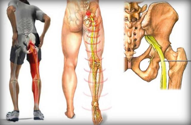 Болит копчик: причины болей у мужчин и женщин