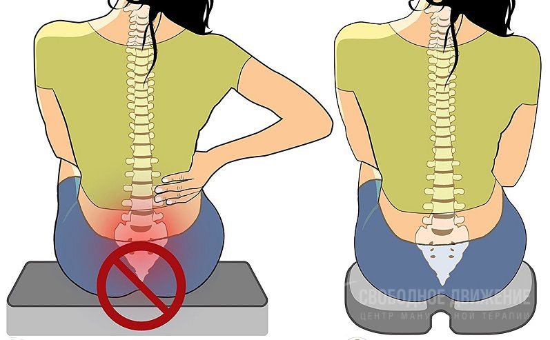 Боль в копчике отдает в ногу: причины и лечение