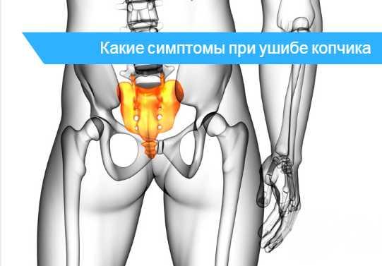 Боль отдаёт в правую ягодицу – характер болей, причины, профилактика отдающей боли справа в ягодицу