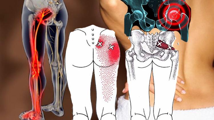 Болит копчик, когда сидишь и встаешь: причины, симптомы и лечение