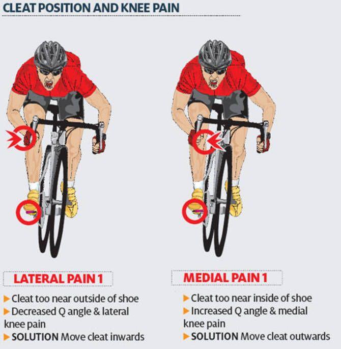 Воспаление мениска коленного сустава